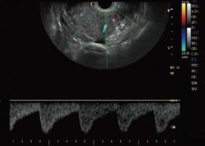 CHISON Q5 ultrahang készülék