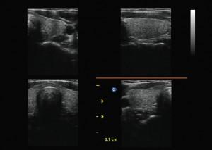 CHISON ECO 3 hordozható ultrahang készülék
