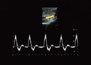 ultrahang készülék