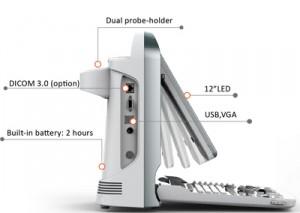 CHISON ECO5 ultrahang készülék
